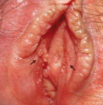 Tiny Itchy Rash On Swollen Labia Minora - HealthTap