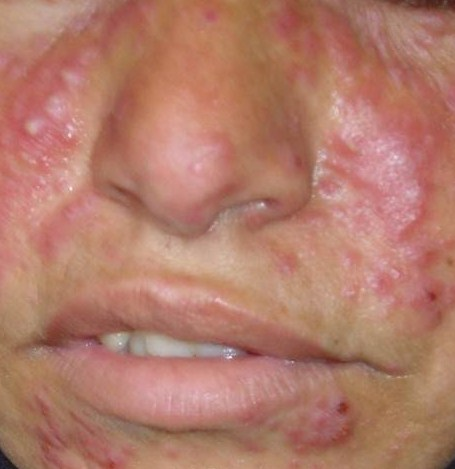 Accutane Side Effects Accutane Side Effects Female The